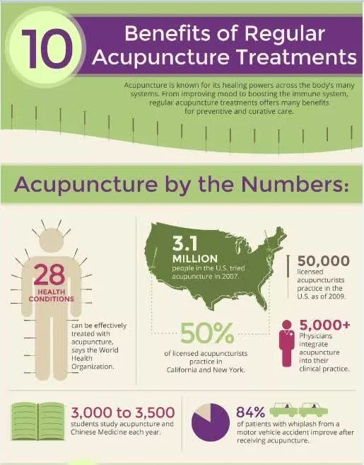 Acupuncture FAQs and what to expect