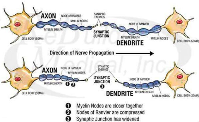 Acupuncture treatment for Peripheral Neuropathy: What happens to nerves when deprived of oxygen? Actual shrinkage of nerve cells resulting in widened synaptic junction.